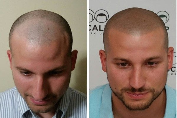 Landing page scalp micropigmentation for hair loss new for Head tattoo hairline