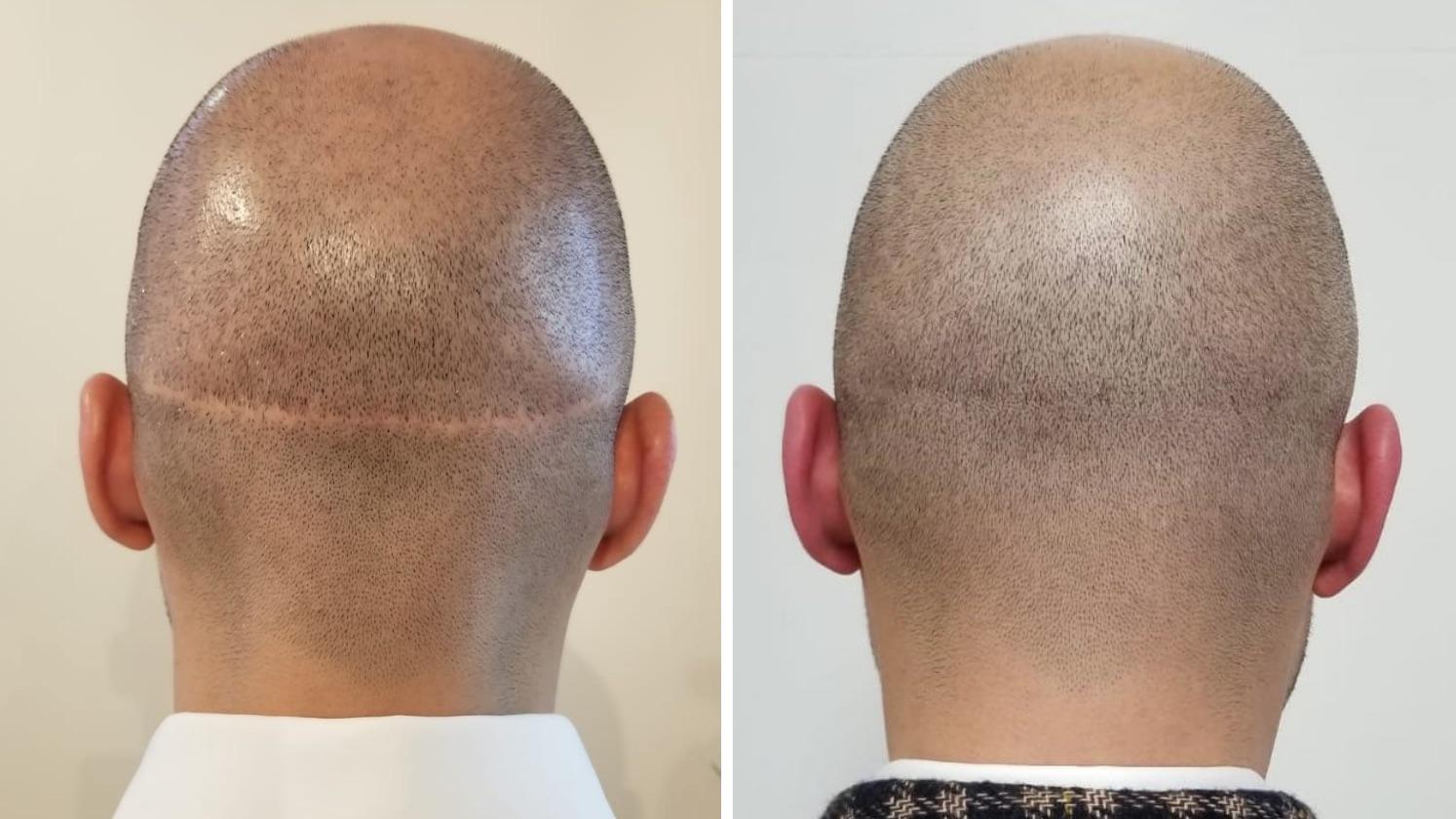 hair transplants scars fue fut