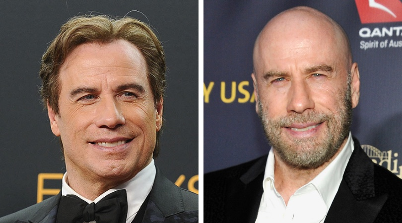john travolta scalp micropigmentation