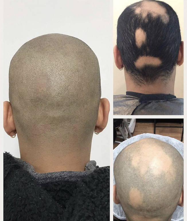 alopecia scalp micropigmentation and gray hair