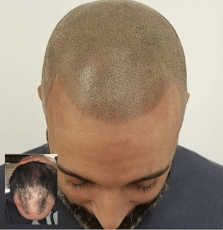 scalp micropigmentation grey hair