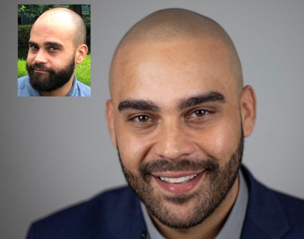 scalp micropigmentation smp treatment