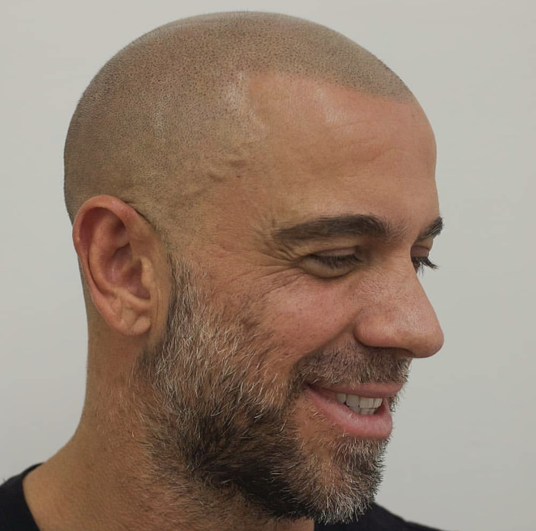 scalp micropigmentation with gray hair