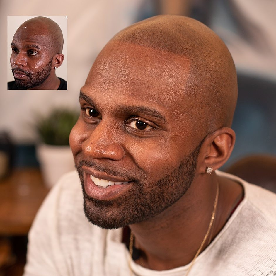 scalp pigmentation ny