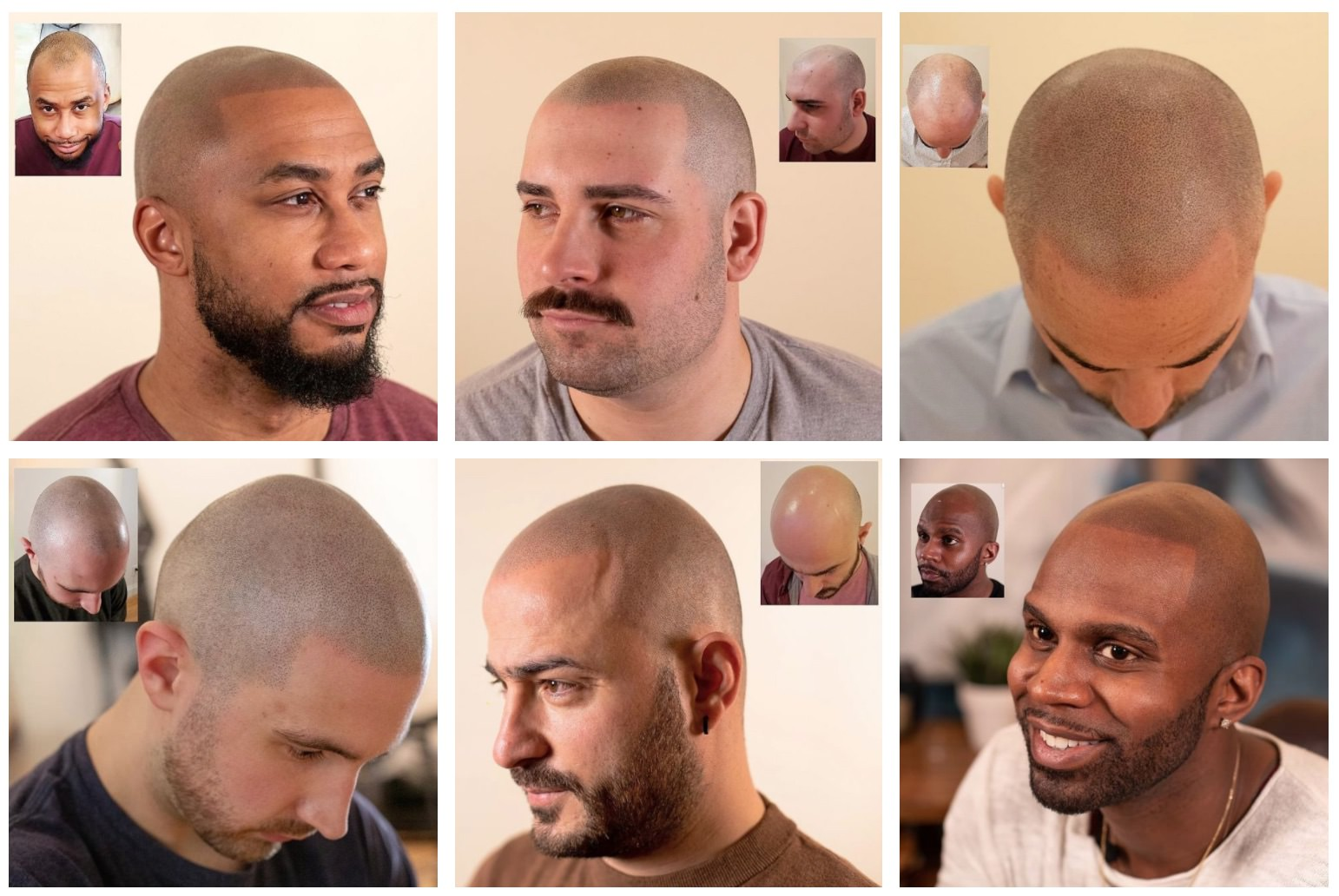 scalp micropigmentation hairlines